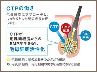 CTPについて