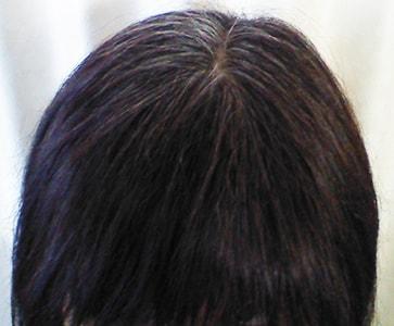 白髪が生え始めた女性